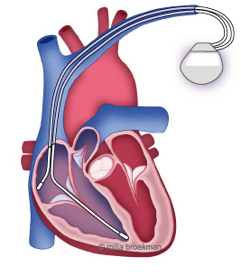 hart apparaatje